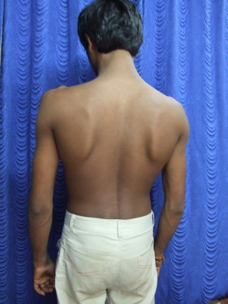 How To Distinguish Between Permanent Remission Of Psoriasis And